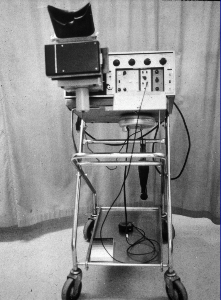 early echocardiography