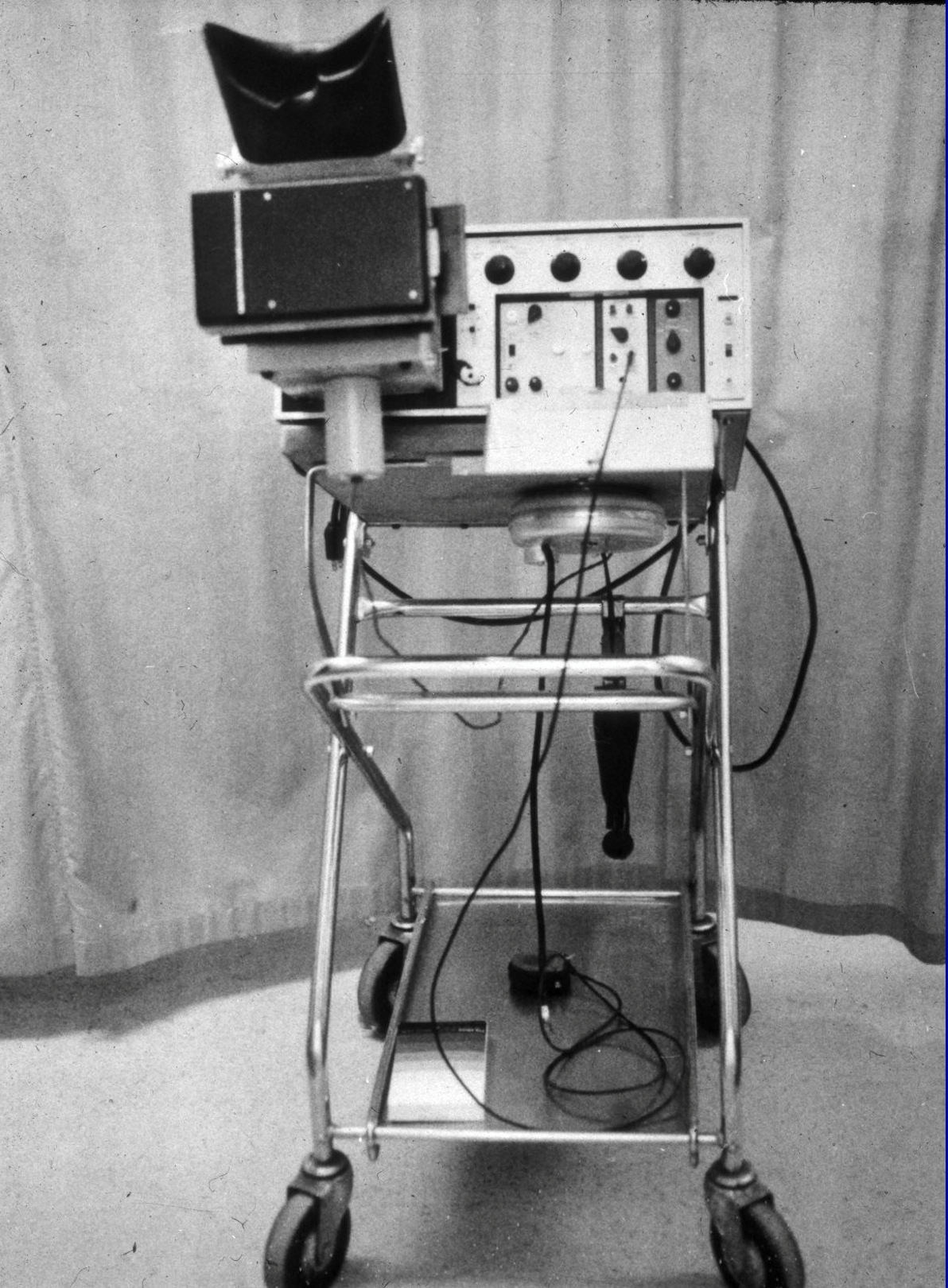 early echocardiography